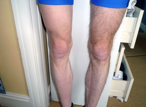 Looking at this photo - Do I need to say more why cyclists shave their legs?